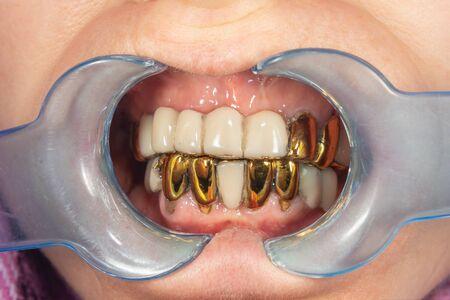sick spoiled teeth of man close-up. Metal dental crowns, poor hygiene.