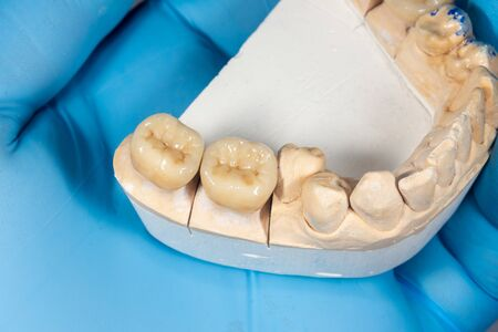 zirconium crowns of human teeth close-up in the hand of dentist doctor.