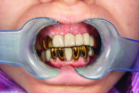 bad dental crowns close-up in person's mouth at the dentist's appointment. The concept of poor-quality prosthetics