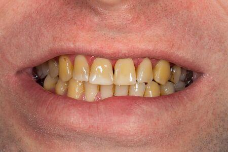 fumo, placca sui denti denti umani dopo il fumo. Placca resinosa marrone sul primo piano dei denti. Fumo danno concetto Archivio Fotografico