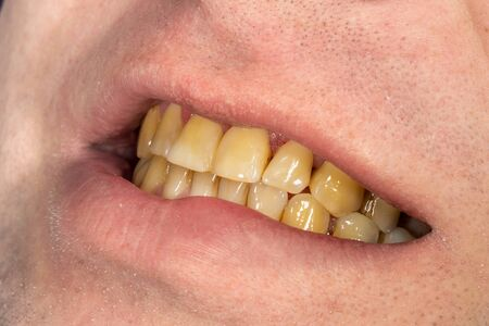smoking, plaque on teeth