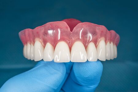 denture. Full removable denture of the upper jaw of man with white beautiful teeth in the hand of a dentist. Aesthetic Dentistry