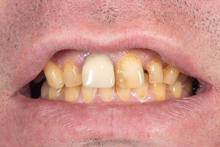 smoking, plaque on teethhuman teeth after smoking. Brown resinous plaque on teeth close-up. Smoking harm concept