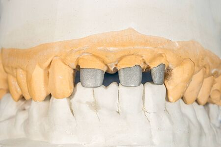 metal cast pin of a human tooth on a gypsum model close-up in dental laboratory. Orthopedic dentistry preparation for crown restoration