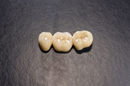 Ceramic tooth crowns and metal pins close-up macro. Orthopedic dentistry restoration decayed teeth
