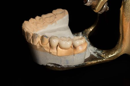 Dental veneers, ceramic and zirconium crowns of teeth close-up macro isolate on black background. Laboratory technical production  prostheses