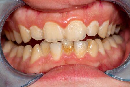 Plakette des Patienten, Stein. Zahnärztliche Behandlung von Zahnbelag, professionelle Mundhygiene. Das Konzept der Schädigung von Rauchen und Zähneputzen Standard-Bild