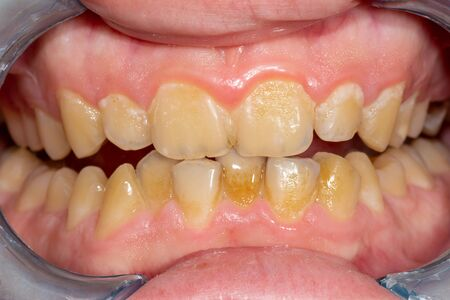 tartar close-up on the lower anterior incisors. Dental hygiene of teeth 免版税图像