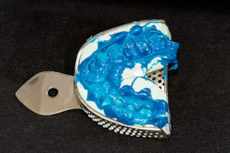 silicone tooth print for the manufacture of blue tooth pin and tooth crown. Restoration of a man's smile in a dental clinic