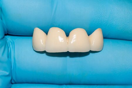 ceramic denture. Ceramic-metal bridge of human teeth in the hands of dentist in blue gloves. Close-up. Macro. 免版税图像