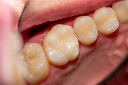 treatment tooth decay with subsequent filling with photopolymer material. Close-up, macro