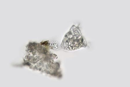 sedentary: Vorticella campanula. Zooplankton