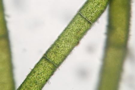 filamentous: Filamentous algae phytoplankton super macro. Spirogyra. Aquaculture