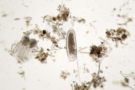 unicellular: Freshwater unicellular microorganism. Zooplankton Super Macro