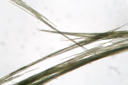 algal: Freshwater cyanobacteria Aphanizomenon by microscope. The cause of algal blooms, green water. The sample is pressed with a cover glass.