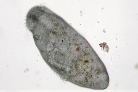 protozoan: Microorganism moves in freshwater. Stentor or trumpet animalcules is filter-feeding, heterotrophic protozoan ciliate