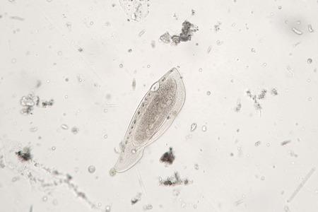 protozoan: Freshwater zooplankton probably protozoan ciliated Ciliophora or Turbellaria Stock Photo