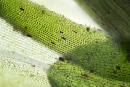 waterweed: Waterweed Elodea leaf structure by microscope. Freshwater plant aquarium decorative algae. Eutrophication problem Stock Photo