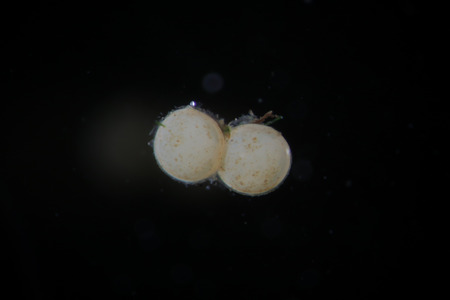 freshwater snails: Eggs of freshwater gastropod snails by microscope. Unwanted or useful aquarium inhabitants Stock Photo