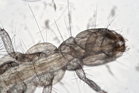 Freshwater life by microscope. Microcosm from Ukrainian river