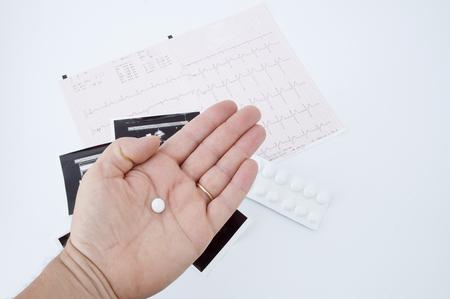 of electrocardiogram: pill and electrocardiogram exams Stock Photo
