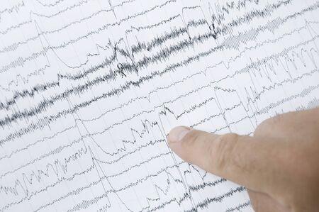 electrocardiograma: electrocardiograma  Foto de archivo