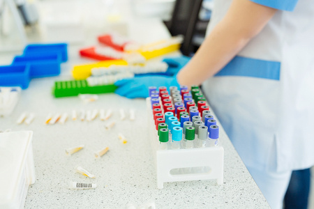 sample tray: Blood tube test for analysis in the laboratory. Blood tubes in tray in the lab