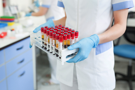 Hands of a lab technician holding a rack of color test tubes with blood samples of other patients.