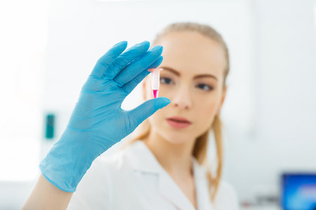 Hand of a lab technician holding a mini test tube with blood sample for analysis.