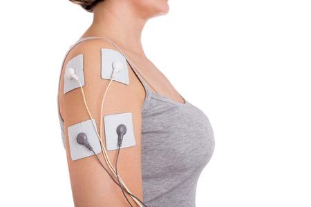 stimulator: Treatment of shoulder tendinitis. Electrical stimulator.