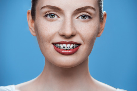 Happy beautiful girl with braces on blue background Stock Photo