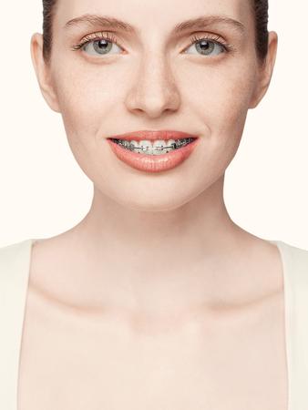 overbite: Happy beautiful girl with braces, isolated on white background Stock Photo