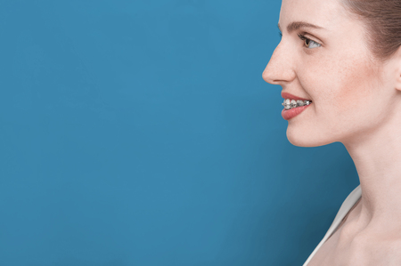 overbite: profile woman face with smile and braces,on blue background