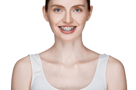 overbite: happy beautiful girl with braces isolated on white background Stock Photo