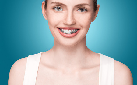 overbite: Happy beautiful girl with braces on blue background Stock Photo