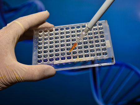 medical procedure: A scientific experiment in the laboratory. The study of biological sample in a well plate.