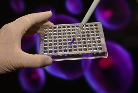 medical procedure: In the biomedical laboratory. The study of biological sample in a well plate.