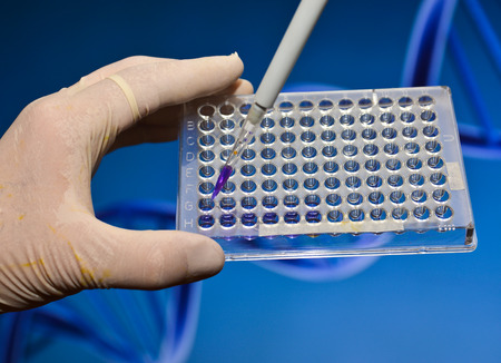 medical procedure: DNA testing in a scientific laboratory. The study of biological sample in a well plate.