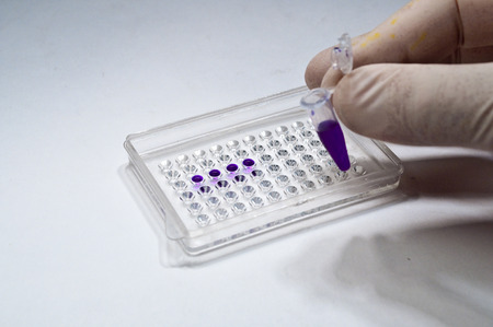 metodo cientifico: En los laboratorios de investigaciones biológicas. Los pozos y muestras impresas del material investigado. Foto de archivo