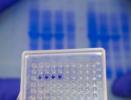metodo cientifico: Las pruebas de ADN en el laboratorio. Bueno plato con muestras en el electroforegrama fondo. Foto de archivo