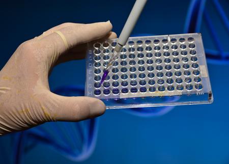 metodo cientifico: Las pruebas de ADN en un laboratorio cient�fico. El estudio de la muestra biol�gica en una placa de pocillos.
