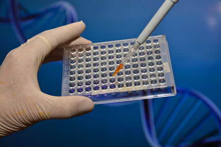 introducing: In the laboratory of medical genetics. Introducing the biological sample into a pipette well plate.