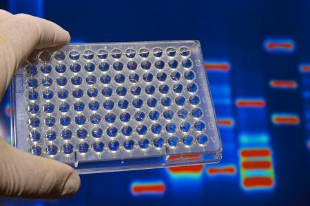 metodo cientifico: Las pruebas de ADN en los laboratorios de genética. equipamiento científico biológica.