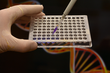 medical testing: Tests in Medical Science Laboratory. DNA testing for the diagnosis of human diseases.