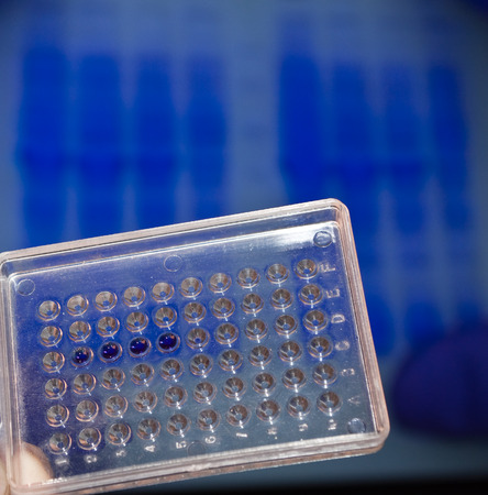 metodo cientifico: DNA testing in the laboratory. Well plate with samples on the background electrophoregram. Foto de archivo