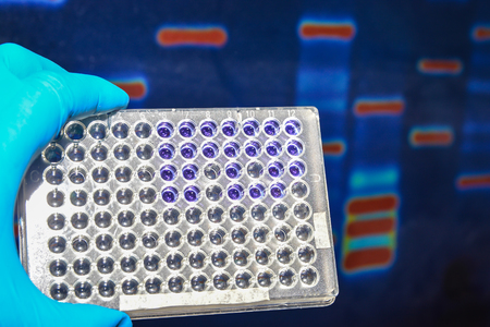 Laboratory DNA testing. 96-well plate on the background of the image of electrophoresis.