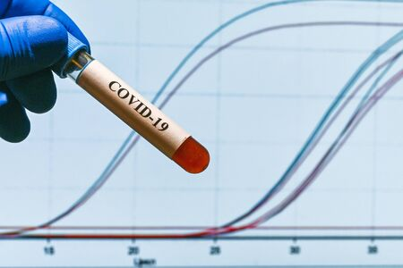 PCR diagnostics COVID-19. A test tube with a sample against the background of REAL-TIME PCR amplification curves.