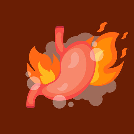 Stomach heartburn. Stomach with Fire. isolated on white background. Vector illustration. Eps 10 Ilustração