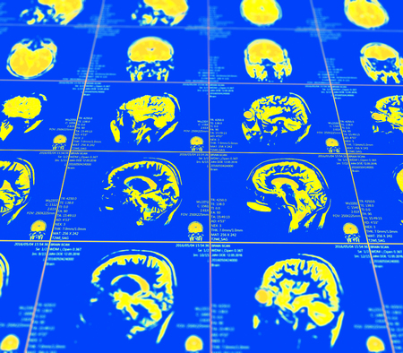 resonancia magnetica: Magnetic resonance imaging of the brain with no visible abnormalities. MRI in different views