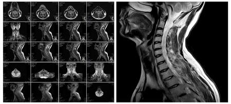L'imagerie par résonance magnétique de la colonne cervicale. disques vertébraux IRM dans différents points de vue